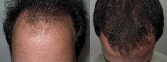 haarceltransplantatie-voor-na