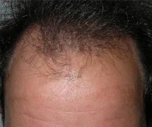 man voor haarstamcel transplatatie